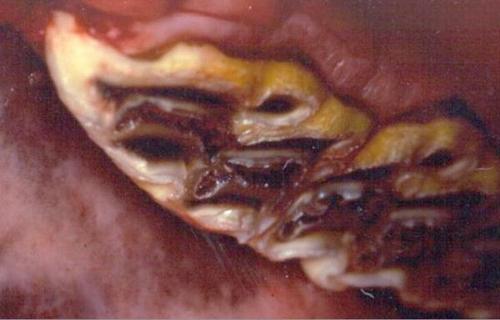При защемлении нерва в позвоночнике симптомы лечение